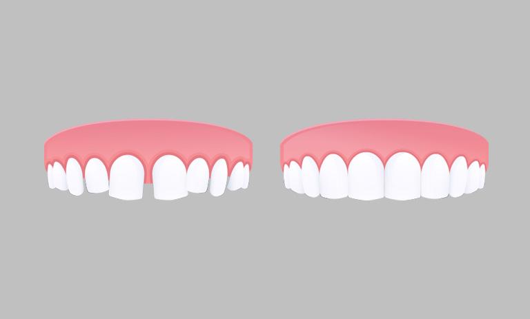 ¿Qué es y cómo se corrige el diastema? Clínica Dental en Avilés. Suárez Rivaya.