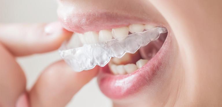 Verdades y mentiras sobre la ortodoncia invisible