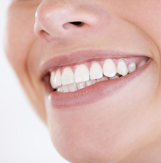 Ventajas de las carillas dentales