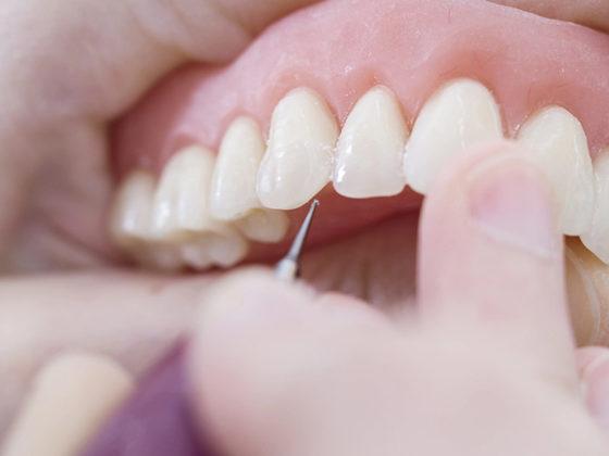 Cuidar las prótesis dentales