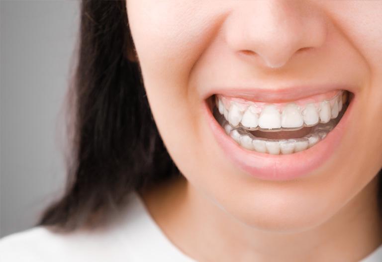 Marcas de ortodoncia invisible - Suárez Rivaya - Ortodoncia en Avilés