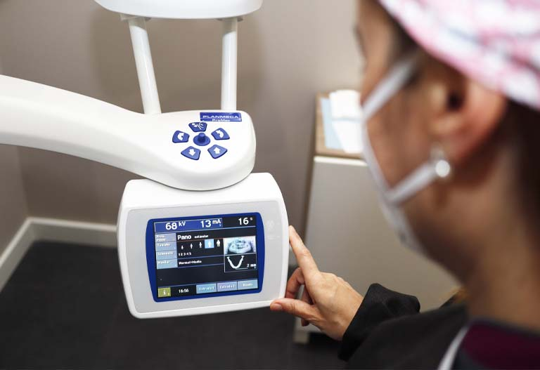 sintomas de rechazo de un implante dental en la clinica. Dentistas en Aviles especialistas en implantes dentales