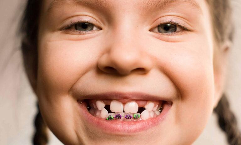 ¿A qué edad se recomienda poner brackets a los niños? Suárez Rivaya, tu dentista en Avilés.
